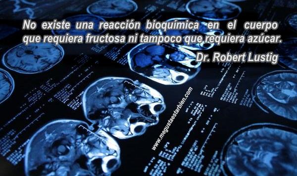 imagenes del cerebro