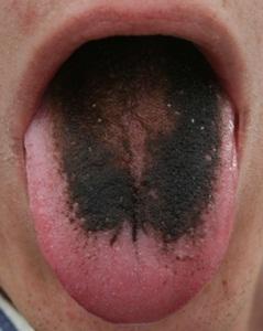 lengua negra
