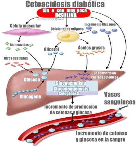 ¿la dieta cetosis puede causar cetonas en la orina?