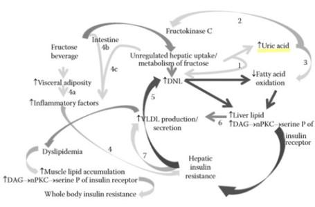 fructose de novo lipogenesis