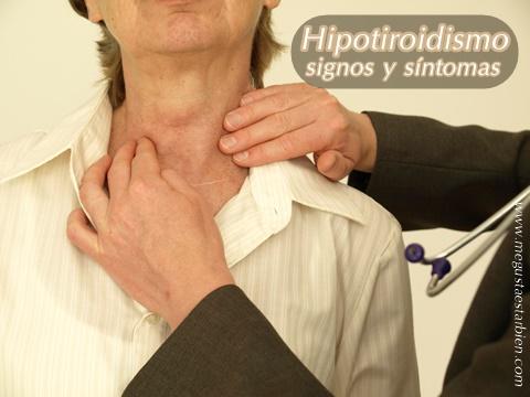 hipotiroidismo signos y sintomas